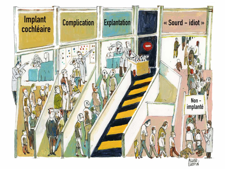 implantC